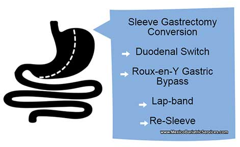Gastric Sleeve Revision Mexico