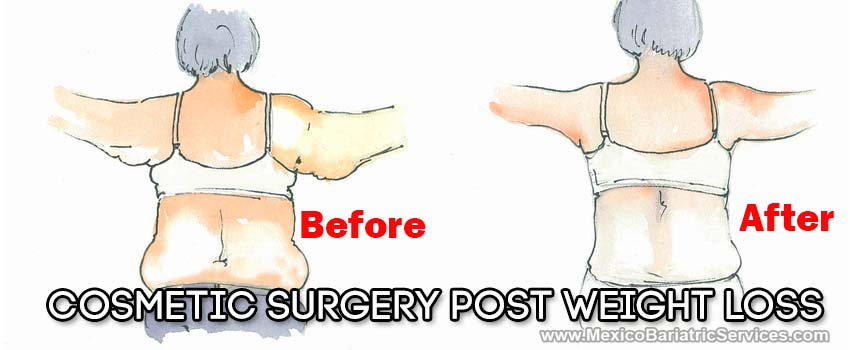 Plastic Surgery After Bariatric Surgery in Mexico