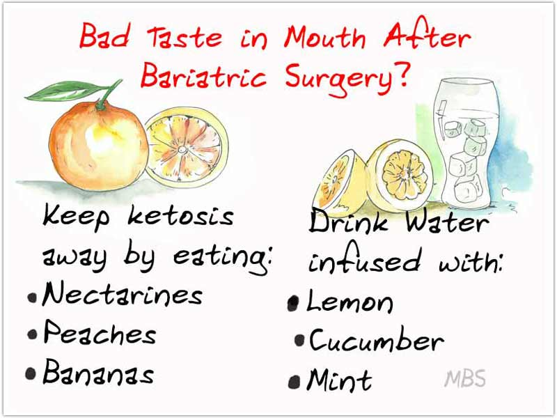Metallic Taste in Mouth Post Bariatric Surgery